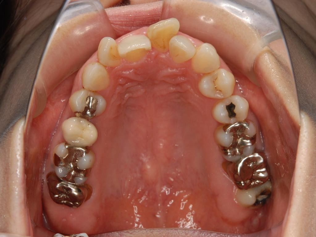銀歯歯周病矯正.003