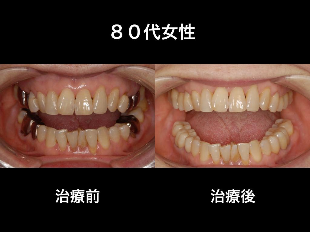 何歳になっても白い歯で.001