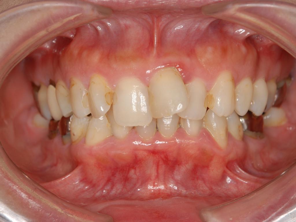 銀歯歯周病矯正.001