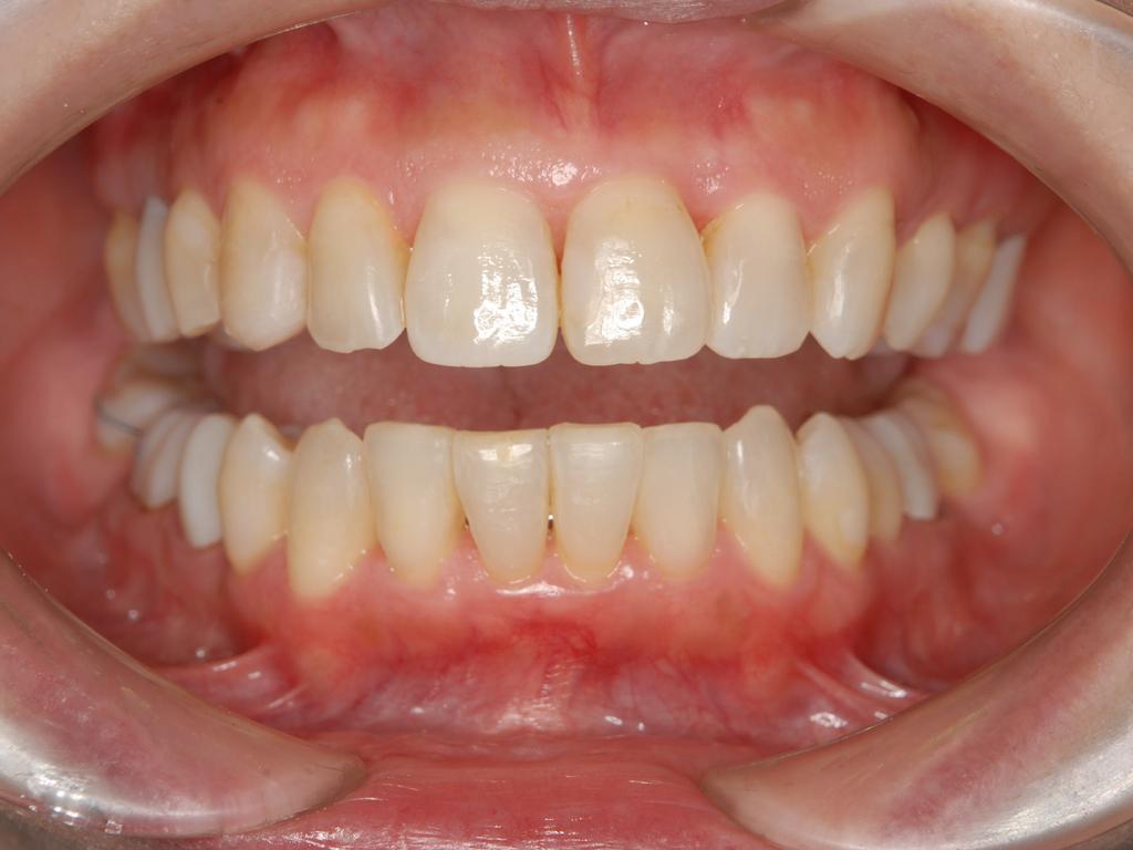 銀歯歯周病矯正.008