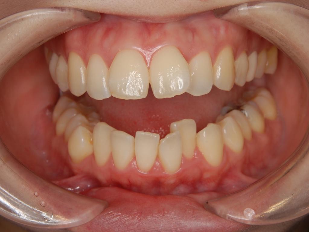 下顎前歯叢生.001