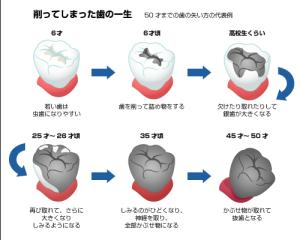 銀歯の結末