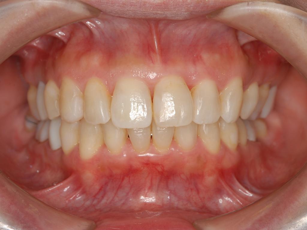 銀歯歯周病矯正.007