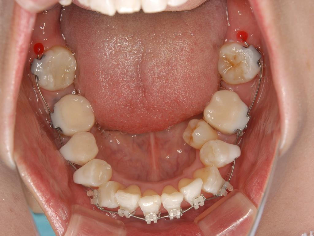 銀歯歯周病矯正.006